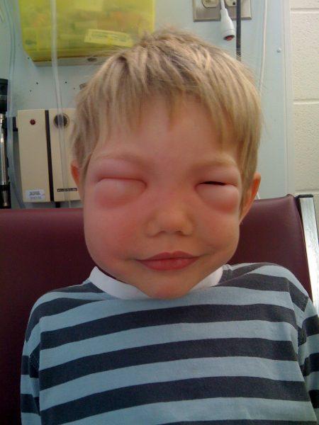 Аллергия при укусе осы на лице ребёнка